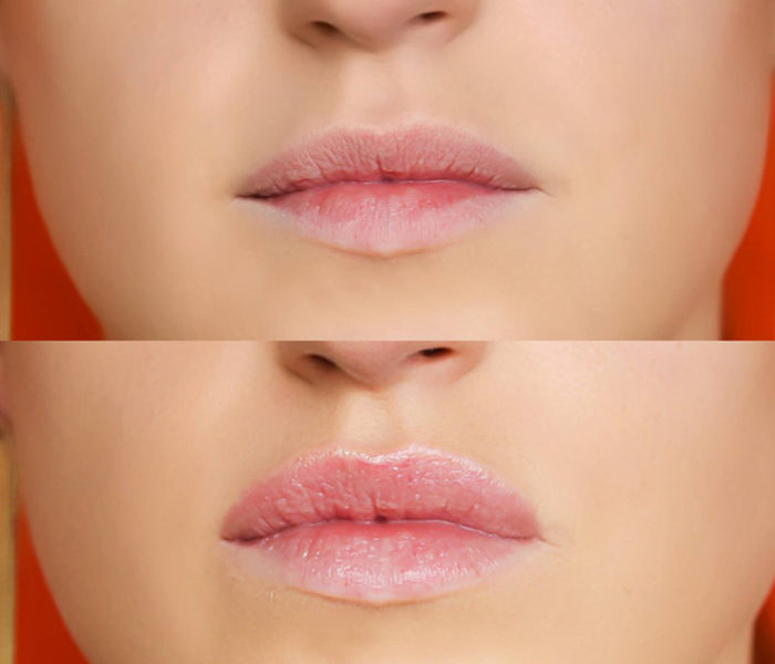 Several ways to stop winter getting the best of your lips!