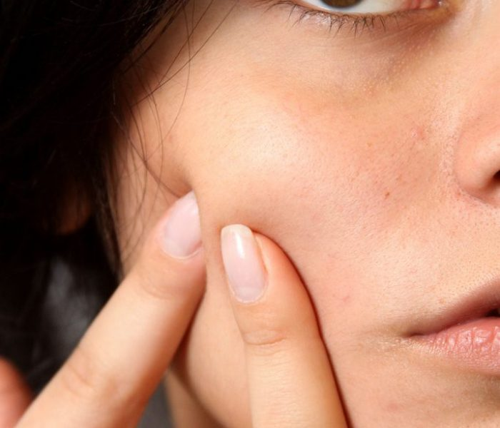Acne: products which could help clear your skin