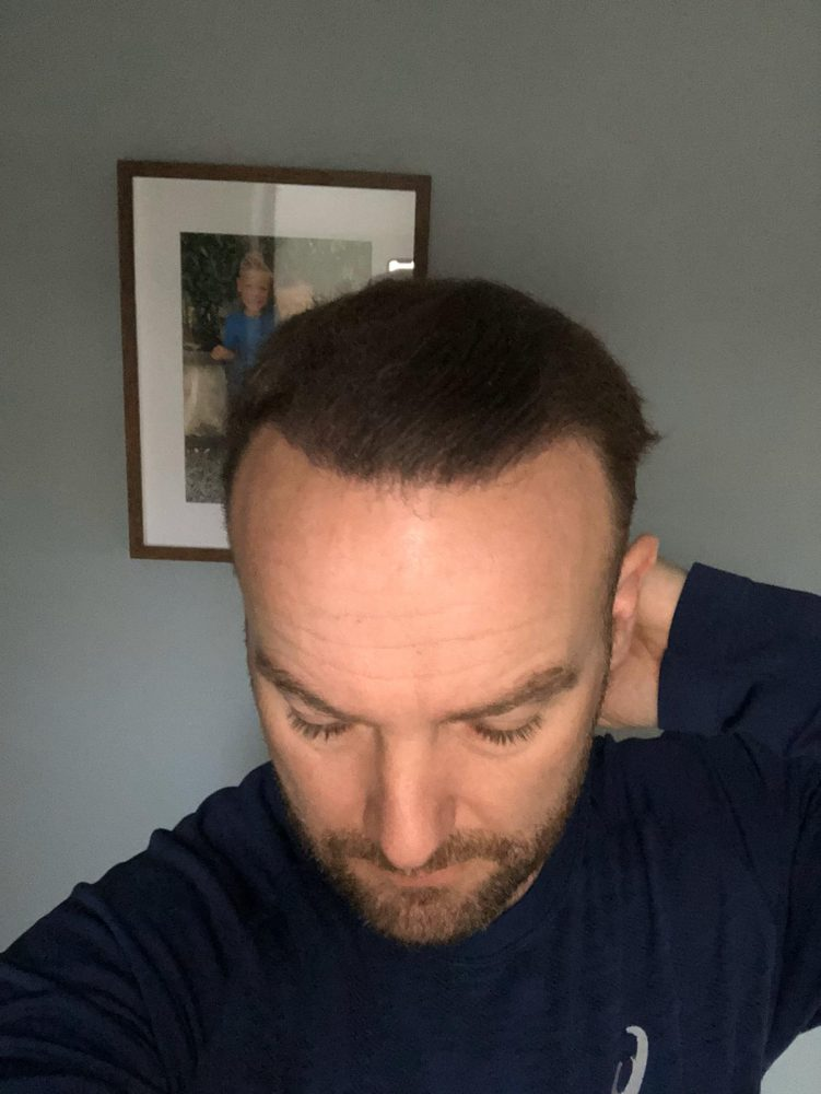 Popstar Kevin Simm urges men to talk about baldness and tells VIVA they should act now